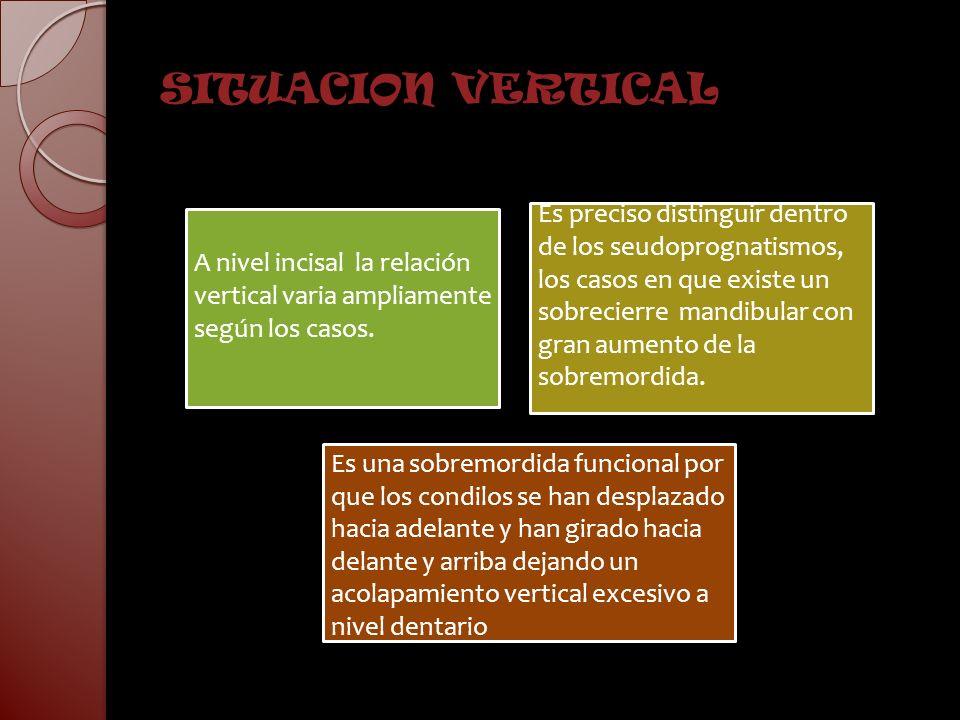 SITUACION VERTICAL A nivel incisal la relación vertical varia ampliamente según los casos. Es preciso distinguir dentro de los seudoprognatismos, los