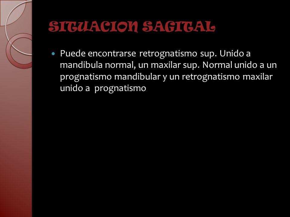 SITUACION SAGITAL Puede encontrarse retrognatismo sup. Unido a mandibula normal, un maxilar sup. Normal unido a un prognatismo mandibular y un retrogn