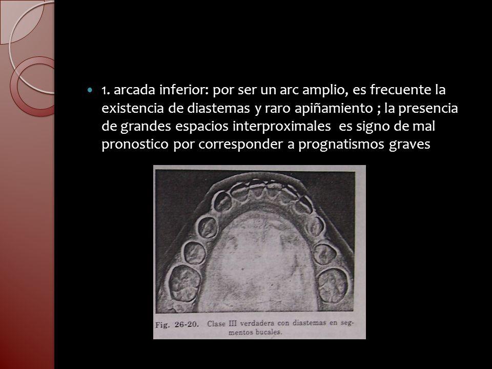 1. arcada inferior: por ser un arc amplio, es frecuente la existencia de diastemas y raro apiñamiento ; la presencia de grandes espacios interproximal