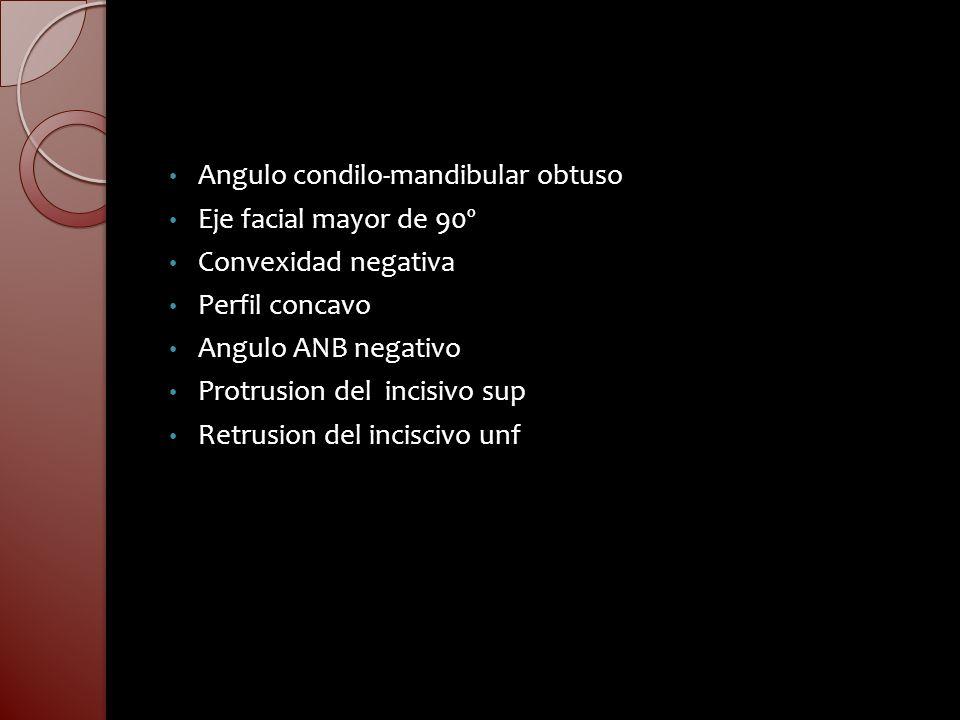 Angulo condilo-mandibular obtuso Eje facial mayor de 90º Convexidad negativa Perfil concavo Angulo ANB negativo Protrusion del incisivo sup Retrusion