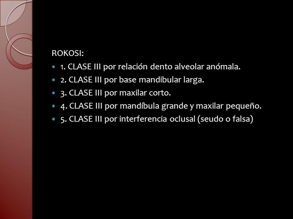 ROKOSI: 1. CLASE III por relación dento alveolar anómala. 2. CLASE III por base mandibular larga. 3. CLASE III por maxilar corto. 4. CLASE III por man