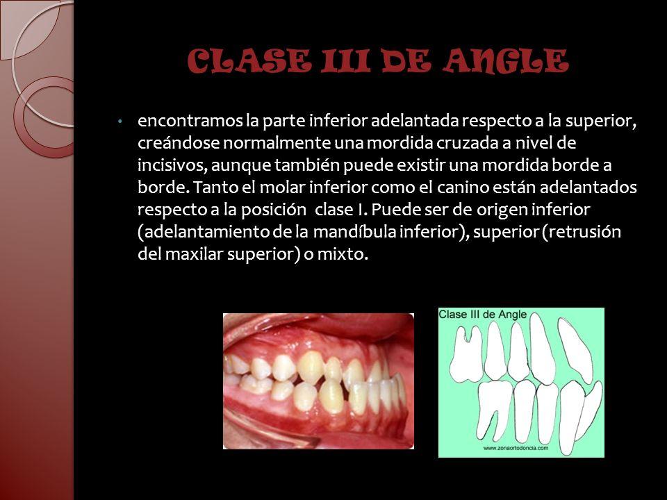 ETIOLOGIA DE LAS MALOCLUSIONES CLASE III Hereditarias Patron oclusal y dentario Papel de la lengua Hiperplasia mandibular