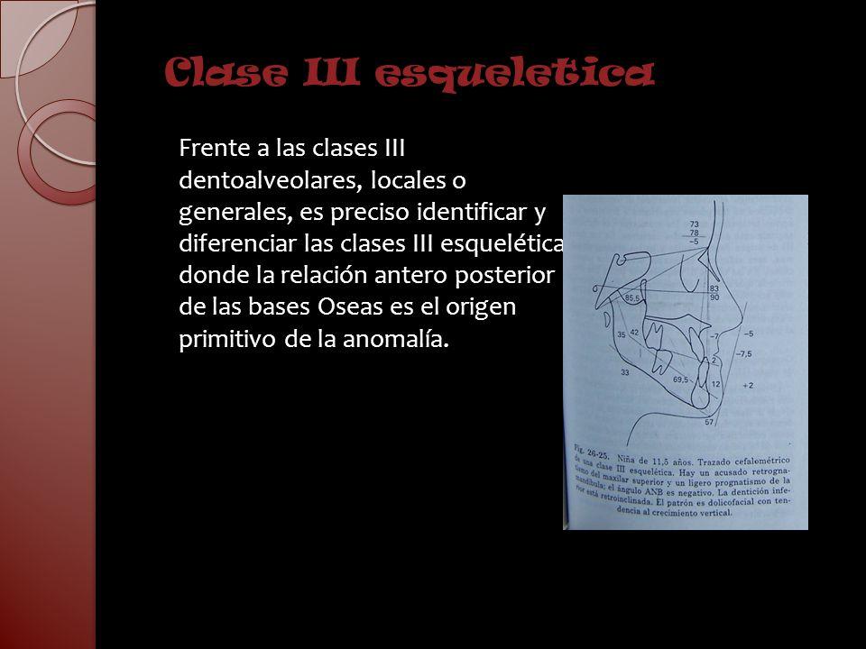 Clase III esqueletica Frente a las clases III dentoalveolares, locales o generales, es preciso identificar y diferenciar las clases III esqueléticas d