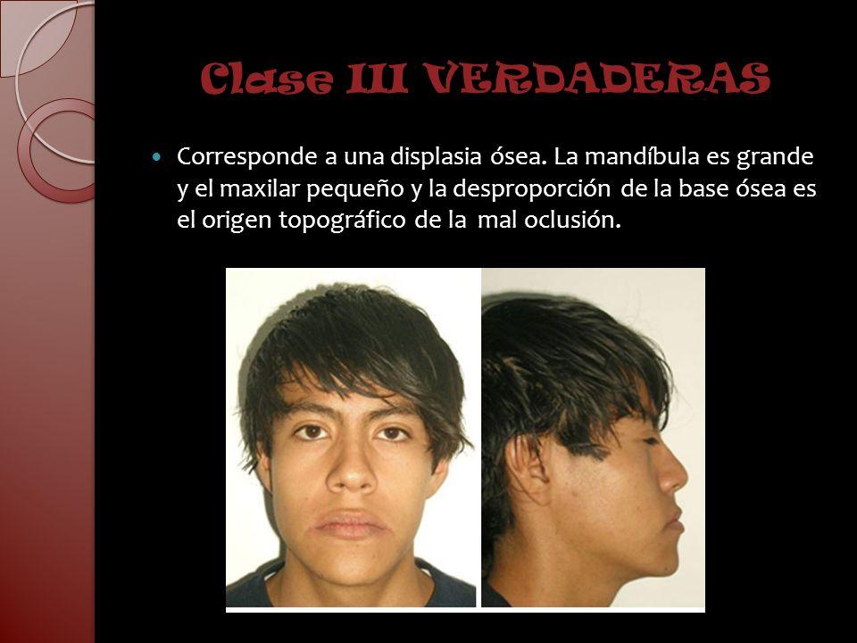 Clase III VERDADERAS Corresponde a una displasia ósea. La mandíbula es grande y el maxilar pequeño y la desproporción de la base ósea es el origen top
