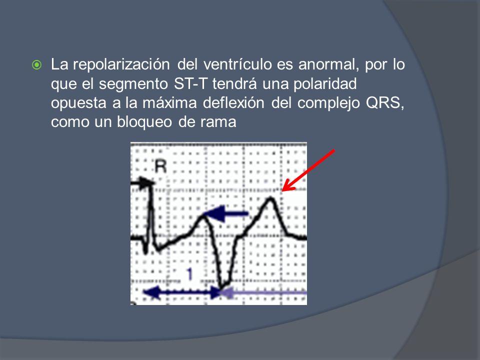 La repolarización del ventrículo es anormal, por lo que el segmento ST-T tendrá una polaridad opuesta a la máxima deflexión del complejo QRS, como un