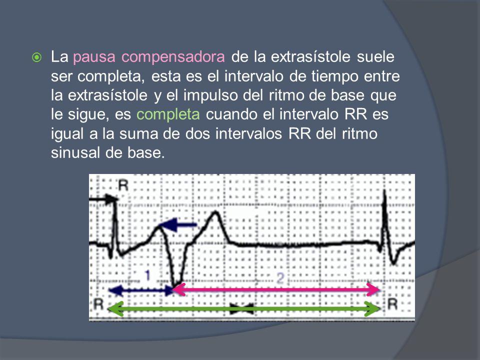 La pausa compensadora de la extrasístole suele ser completa, esta es el intervalo de tiempo entre la extrasístole y el impulso del ritmo de base que l
