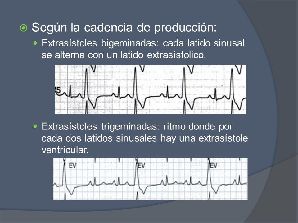 Según la cadencia de producción: Extrasístoles bigeminadas: cada latido sinusal se alterna con un latido extrasístolico. Extrasístoles trigeminadas: r