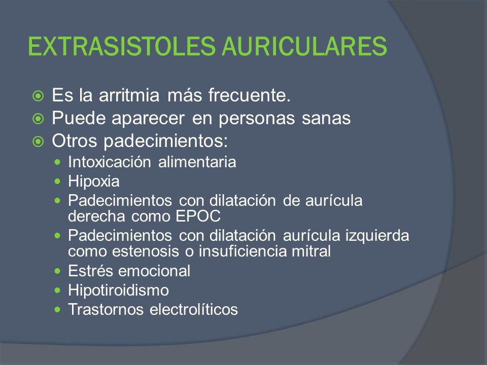 EXTRASISTOLES AURICULARES Es la arritmia más frecuente. Puede aparecer en personas sanas Otros padecimientos: Intoxicación alimentaria Hipoxia Padecim
