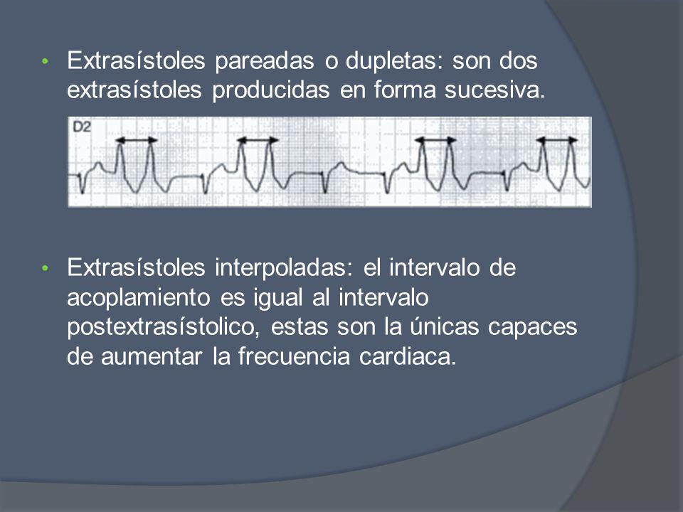 Extrasístoles pareadas o dupletas: son dos extrasístoles producidas en forma sucesiva. Extrasístoles interpoladas: el intervalo de acoplamiento es igu