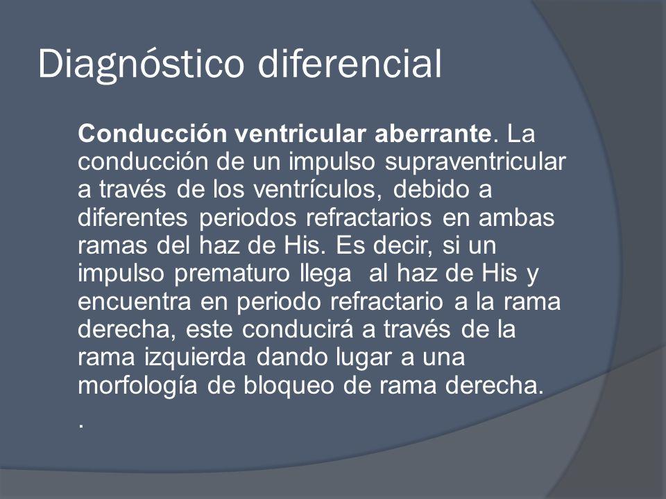 Diagnóstico diferencial Conducción ventricular aberrante. La conducción de un impulso supraventricular a través de los ventrículos, debido a diferente