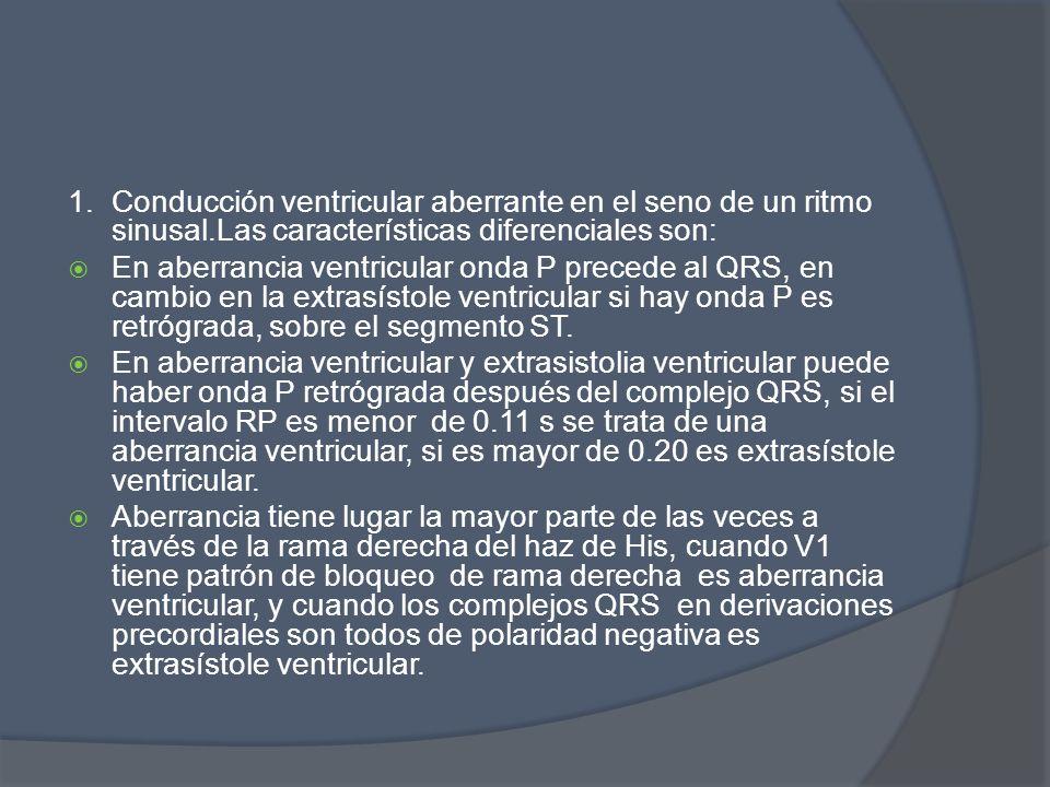 1.Conducción ventricular aberrante en el seno de un ritmo sinusal.Las características diferenciales son: En aberrancia ventricular onda P precede al Q