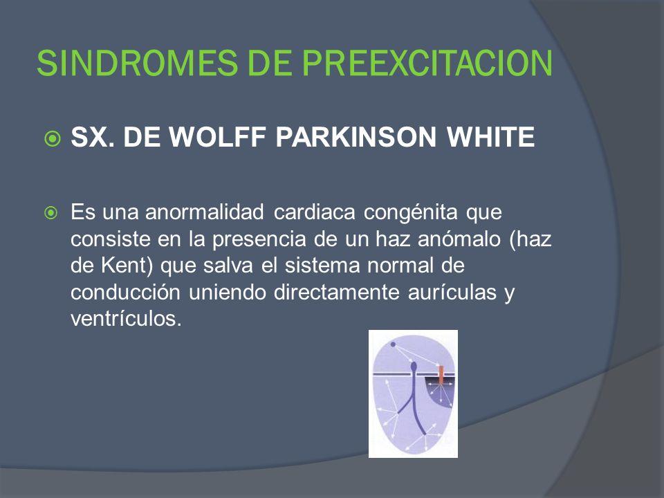 SINDROMES DE PREEXCITACION SX. DE WOLFF PARKINSON WHITE Es una anormalidad cardiaca congénita que consiste en la presencia de un haz anómalo (haz de K