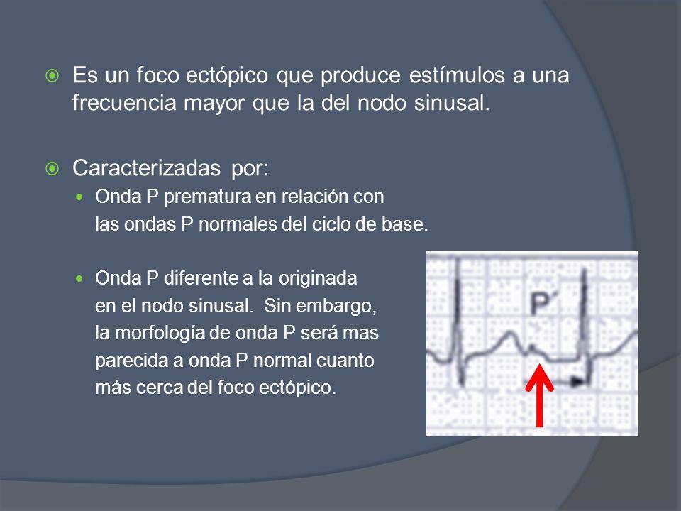 Es un foco ectópico que produce estímulos a una frecuencia mayor que la del nodo sinusal. Caracterizadas por: Onda P prematura en relación con las ond