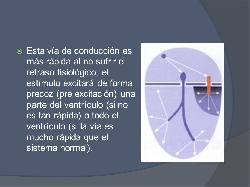Esta vía de conducción es más rápida al no sufrir el retraso fisiológico, el estímulo excitará de forma precoz (pre excitación) una parte del ventrícu