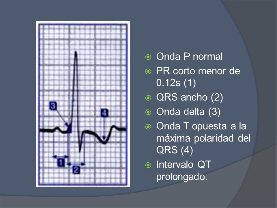 Onda P normal PR corto menor de 0.12s (1) QRS ancho (2) Onda delta (3) Onda T opuesta a la máxima polaridad del QRS (4) Intervalo QT prolongado.