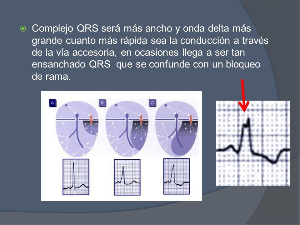 Complejo QRS será más ancho y onda delta más grande cuanto más rápida sea la conducción a través de la vía accesoria, en ocasiones llega a ser tan ens