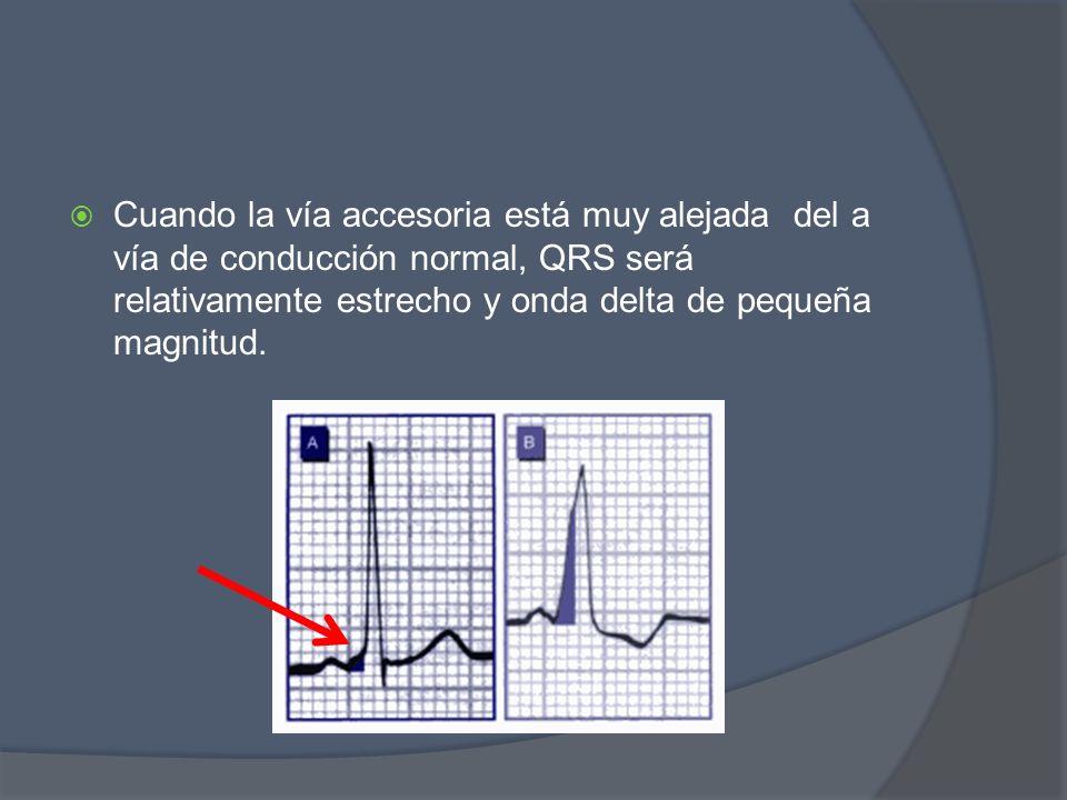 Cuando la vía accesoria está muy alejada del a vía de conducción normal, QRS será relativamente estrecho y onda delta de pequeña magnitud.