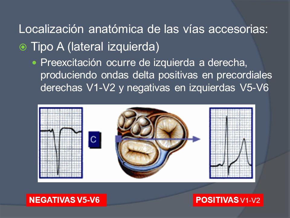 Localización anatómica de las vías accesorias: Tipo A (lateral izquierda) Preexcitación ocurre de izquierda a derecha, produciendo ondas delta positiv
