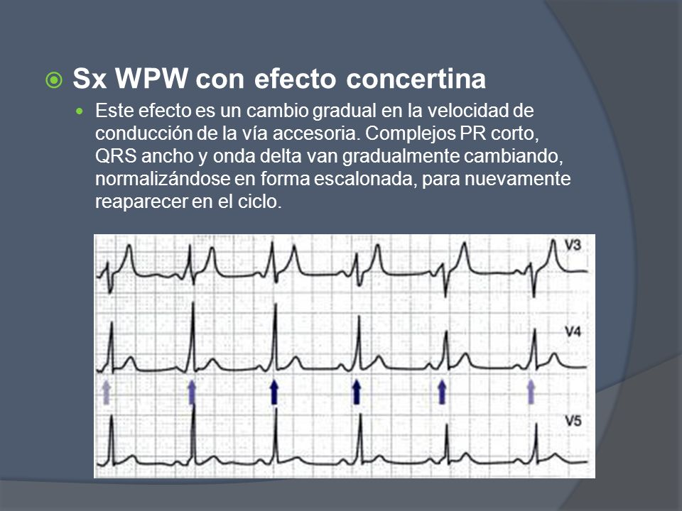 Sx WPW con efecto concertina Este efecto es un cambio gradual en la velocidad de conducción de la vía accesoria. Complejos PR corto, QRS ancho y onda