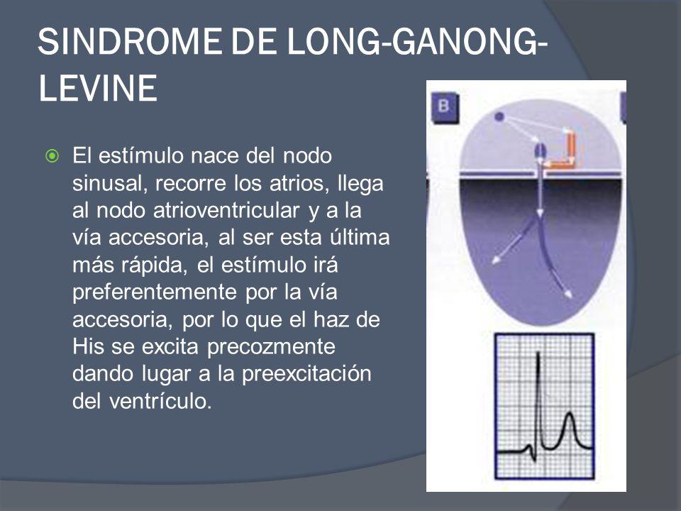 SINDROME DE LONG-GANONG- LEVINE El estímulo nace del nodo sinusal, recorre los atrios, llega al nodo atrioventricular y a la vía accesoria, al ser est