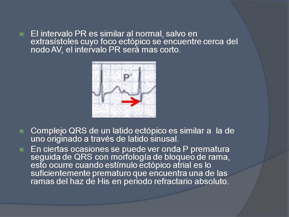 El intervalo PR es similar al normal, salvo en extrasístoles cuyo foco ectópico se encuentre cerca del nodo AV, el intervalo PR será mas corto. Comple