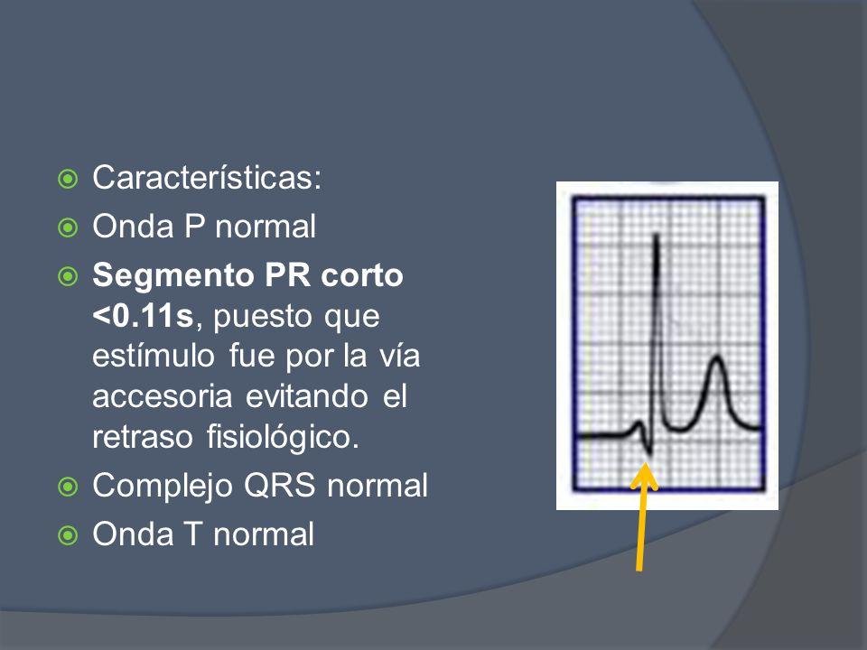 Características: Onda P normal Segmento PR corto <0.11s, puesto que estímulo fue por la vía accesoria evitando el retraso fisiológico. Complejo QRS no