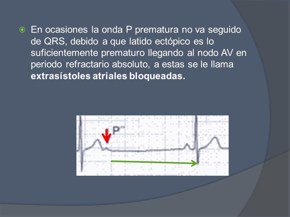 En ocasiones la onda P prematura no va seguido de QRS, debido a que latido ectópico es lo suficientemente prematuro llegando al nodo AV en periodo ref