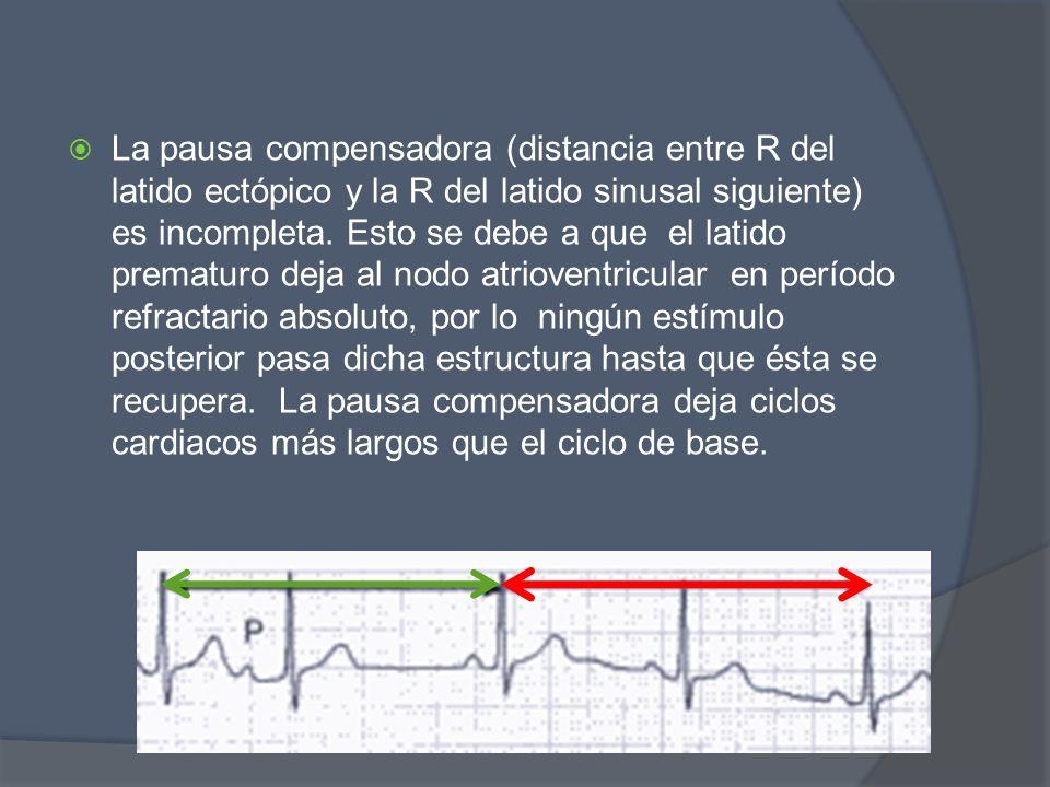 La pausa compensadora (distancia entre R del latido ectópico y la R del latido sinusal siguiente) es incompleta. Esto se debe a que el latido prematur