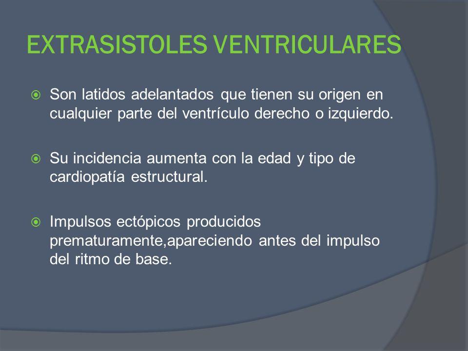EXTRASISTOLES VENTRICULARES Son latidos adelantados que tienen su origen en cualquier parte del ventrículo derecho o izquierdo. Su incidencia aumenta