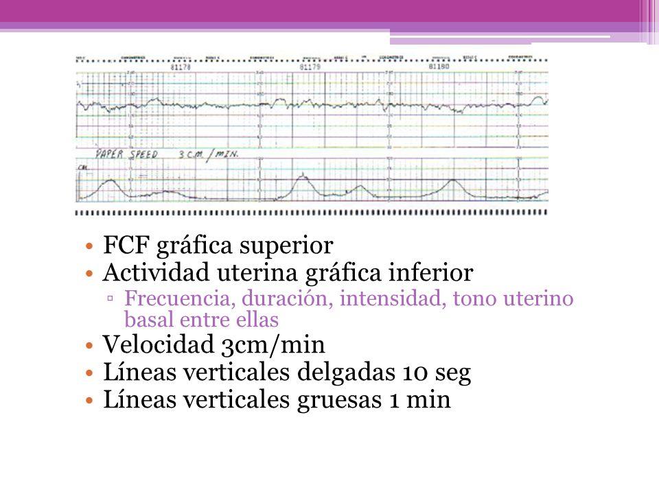 FCF gráfica superior Actividad uterina gráfica inferior Frecuencia, duración, intensidad, tono uterino basal entre ellas Velocidad 3cm/min Líneas vert