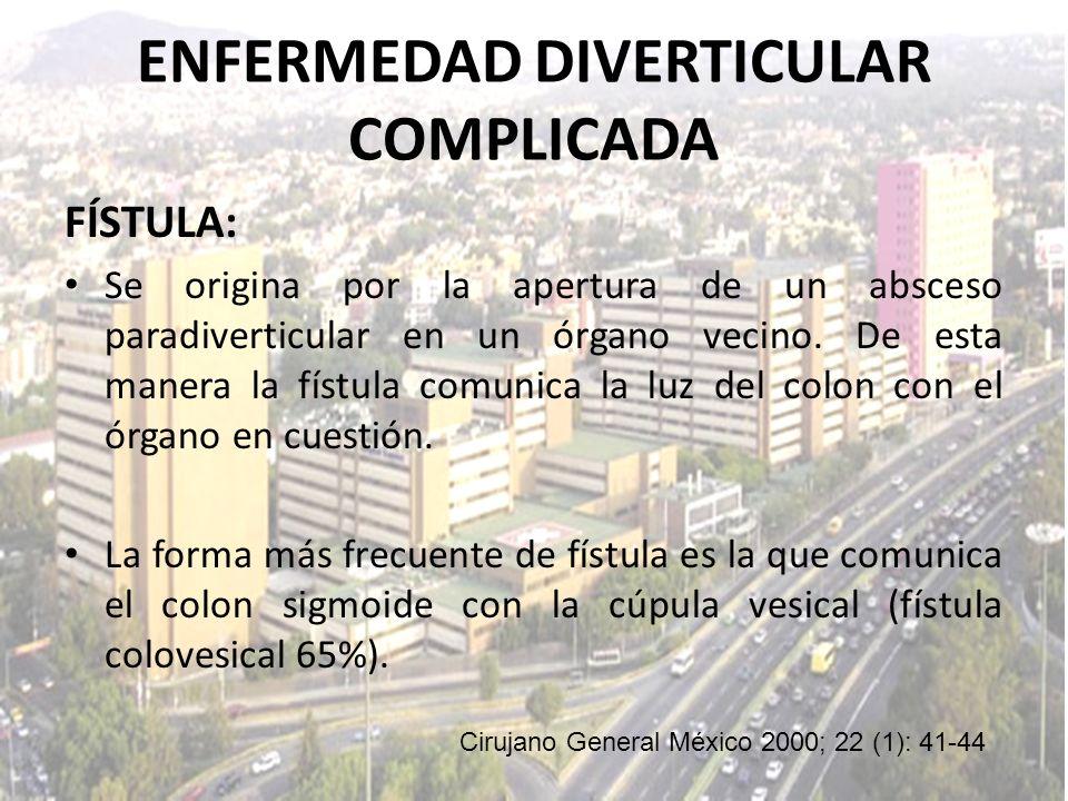 ENFERMEDAD DIVERTICULAR COMPLICADA FÍSTULA: Se origina por la apertura de un absceso paradiverticular en un órgano vecino. De esta manera la fístula c