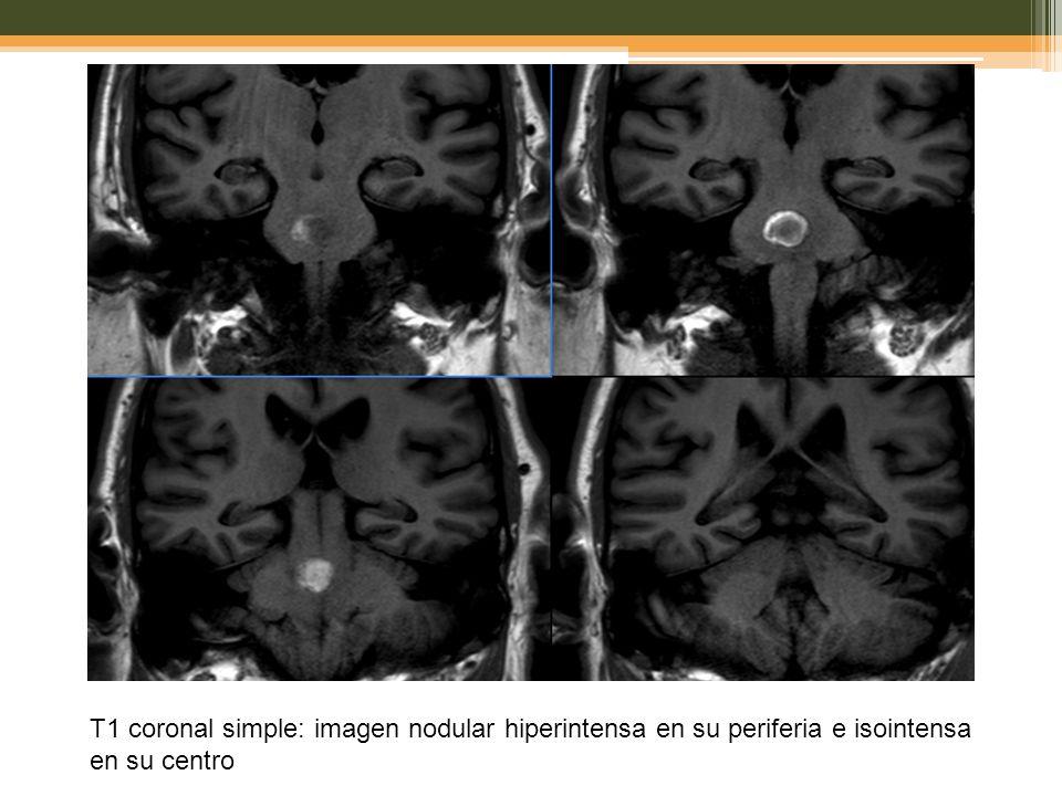 T1 coronal simple: imagen nodular hiperintensa en su periferia e isointensa en su centro