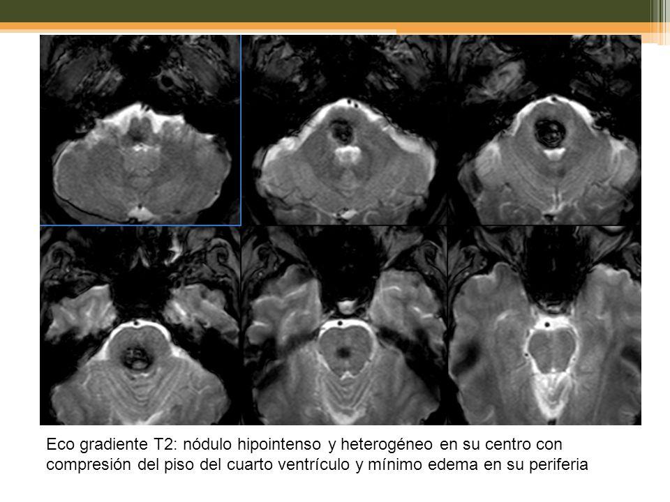 Eco gradiente T2: nódulo hipointenso y heterogéneo en su centro con compresión del piso del cuarto ventrículo y mínimo edema en su periferia