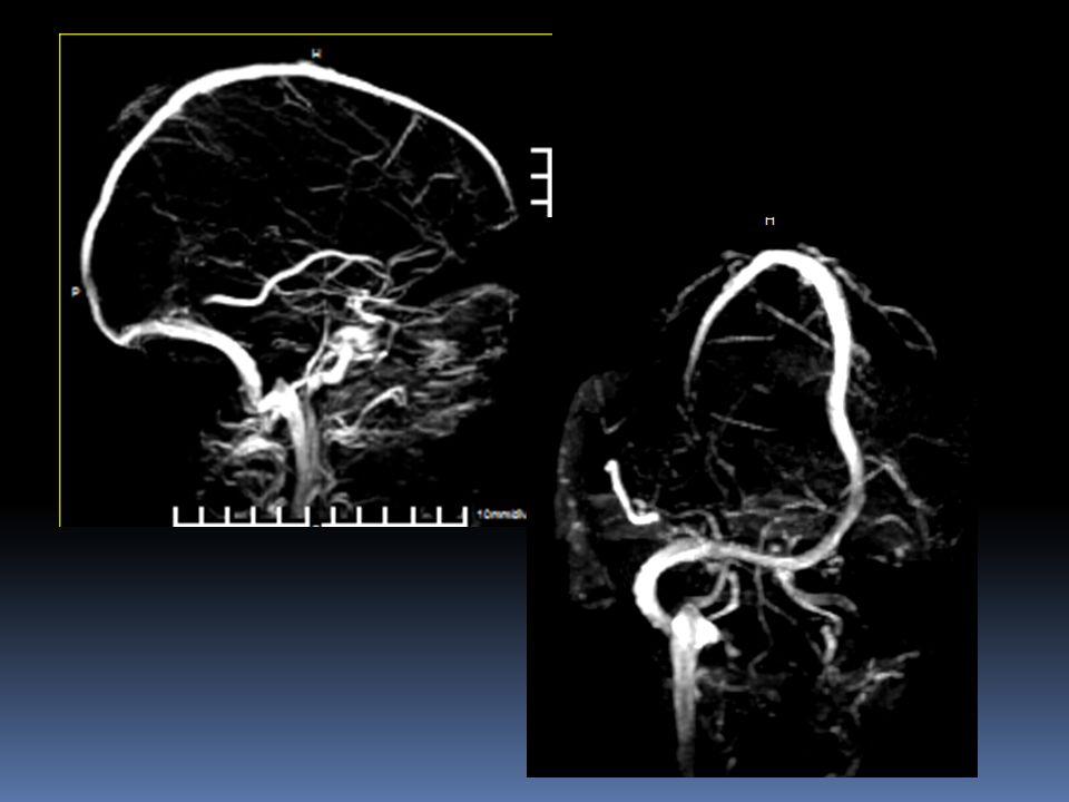 Hallazgos Se observa hiperintensidad de las venas cerebrales internas y seno recto en las secuencias de FLAIR y de T1 y del seno transverso en el primer estudio y en el segundo estudio persistió la hiperintensidad de las venas cerebrales internas y del seno recto pero desapareción la del seno transverso izquierdo.