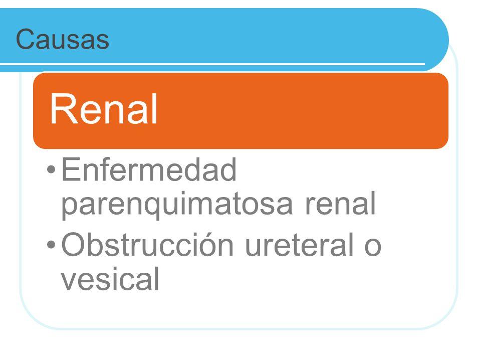 Causas Renal Enfermedad parenquimatosa renal Obstrucción ureteral o vesical