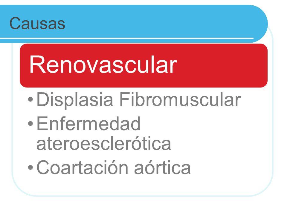 Causas Renovascular Displasia Fibromuscular Enfermedad ateroesclerótica Coartación aórtica