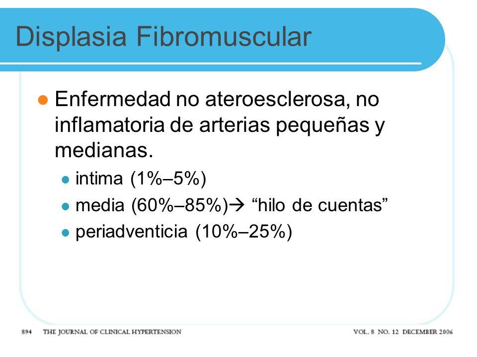 Displasia Fibromuscular Enfermedad no ateroesclerosa, no inflamatoria de arterias pequeñas y medianas. intima (1%–5%) media (60%–85%) hilo de cuentas