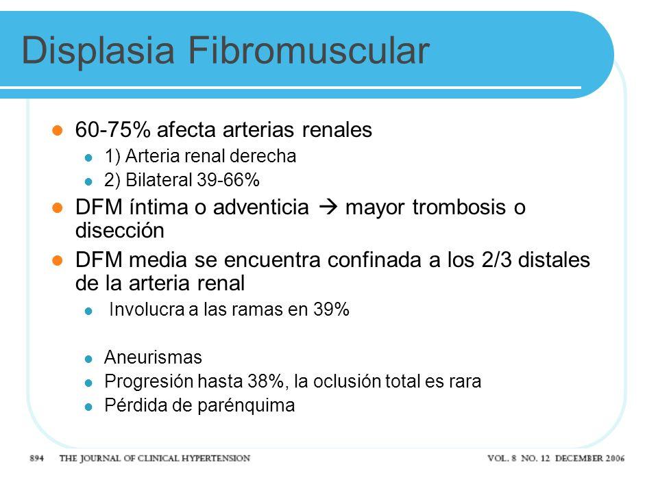 Displasia Fibromuscular 60-75% afecta arterias renales 1) Arteria renal derecha 2) Bilateral 39-66% DFM íntima o adventicia mayor trombosis o disección DFM media se encuentra confinada a los 2/3 distales de la arteria renal Involucra a las ramas en 39% Aneurismas Progresión hasta 38%, la oclusión total es rara Pérdida de parénquima