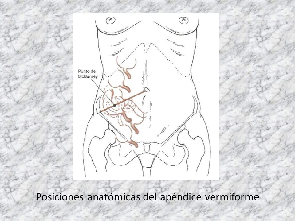 Posiciones anatómicas del apéndice vermiforme