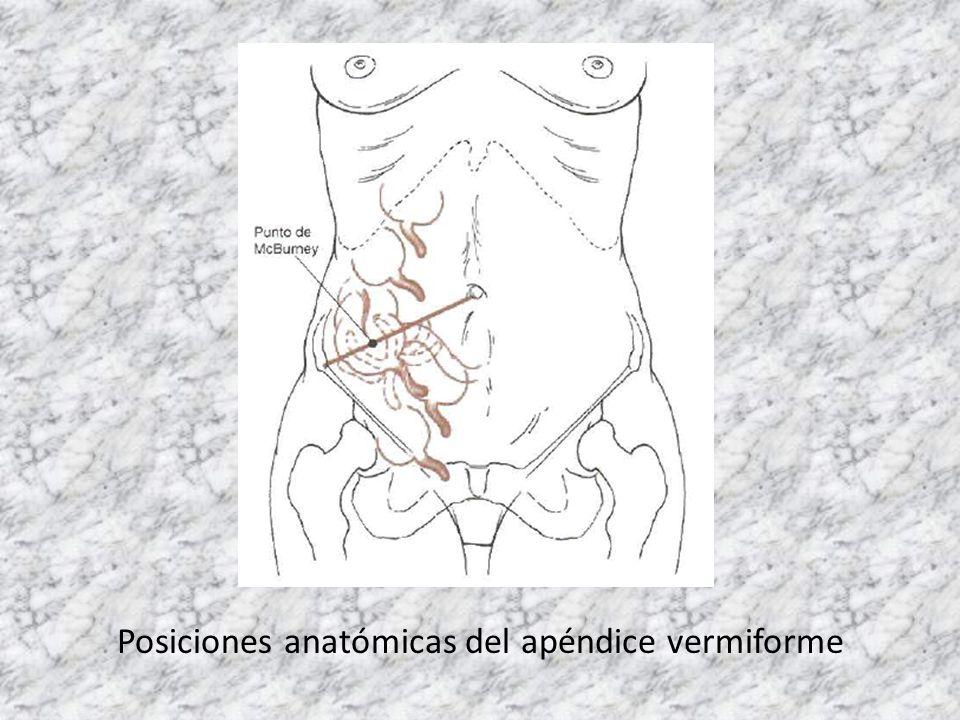 PERITONITIS SECUNDARIA – Lesiones de órganos genitales femeninos: salpingitis gonorreica, aborto séptico, sepsis puerperal.