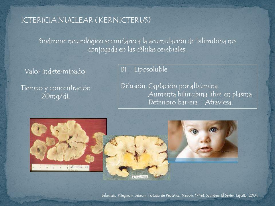 ICTERICIA NUCLEAR (KERNICTERUS) Síndrome neurológico secundario a la acumulación de bilirrubina no conjugada en las células cerebrales. Valor indeterm