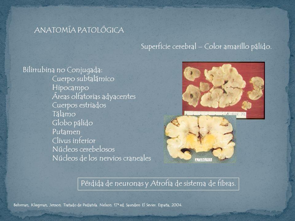 ANATOMÍA PATOLÓGICA Superficie cerebral – Color amarillo pálido. Bilirrubina no Conjugada: Cuerpo subtalámico Hipocampo Áreas olfatorias adyacentes Cu