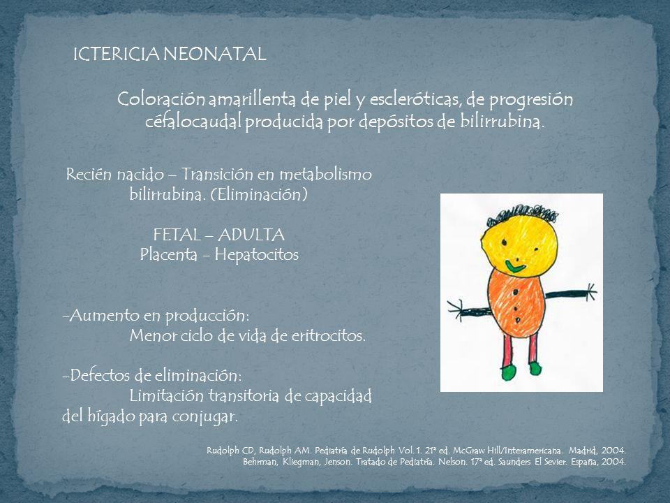 ICTERICIA NEONATAL Coloración amarillenta de piel y escleróticas, de progresión céfalocaudal producida por depósitos de bilirrubina. Recién nacido – T
