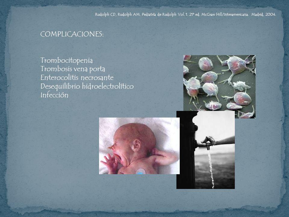 COMPLICACIONES: Trombocitopenia Trombosis vena porta Enterocolitis necrosante Desequilibrio hidroelectrolítico Infección Rudolph CD, Rudolph AM. Pedia