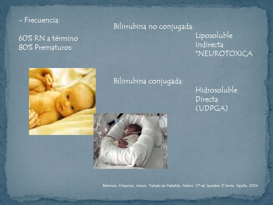 - Frecuencia: 60% RN a término 80% Prematuros Bilirrubina no conjugada: Liposoluble Indirecta *NEUROTOXICA Bilirrubina conjugada: Hidrosoluble Directa