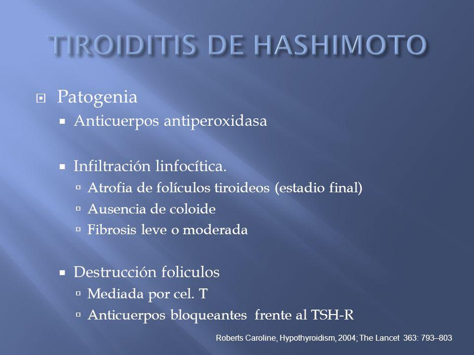 Patogenia Anticuerpos antiperoxidasa Infiltración linfocítica. Atrofia de folículos tiroideos (estadio final) Ausencia de coloide Fibrosis leve o mode