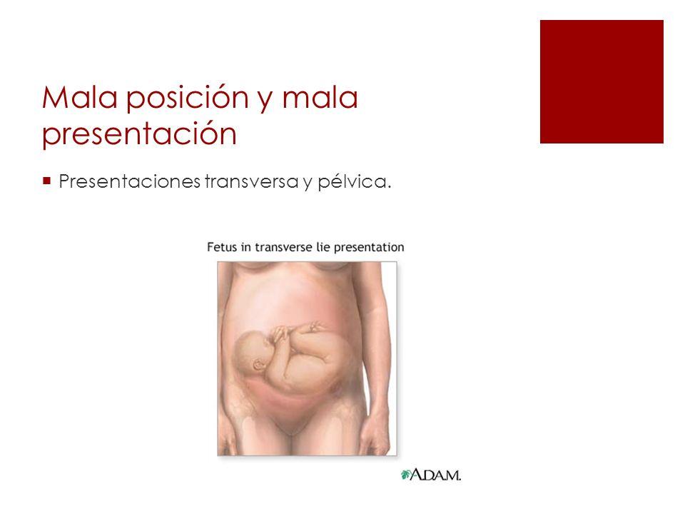Mala posición y mala presentación Presentaciones transversa y pélvica.