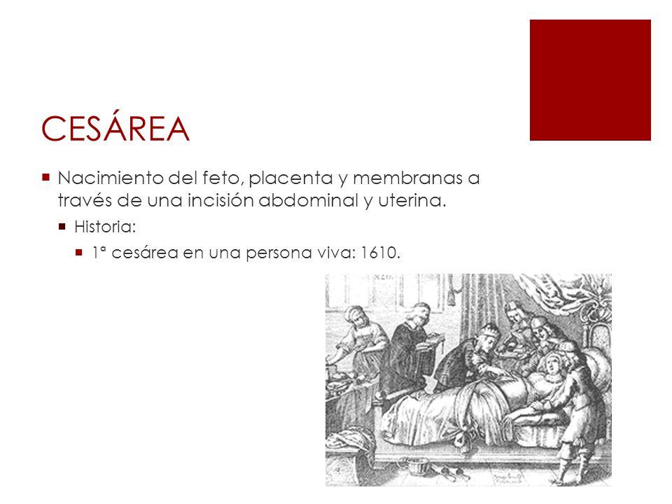 CESÁREA Nacimiento del feto, placenta y membranas a través de una incisión abdominal y uterina. Historia: 1ª cesárea en una persona viva: 1610.