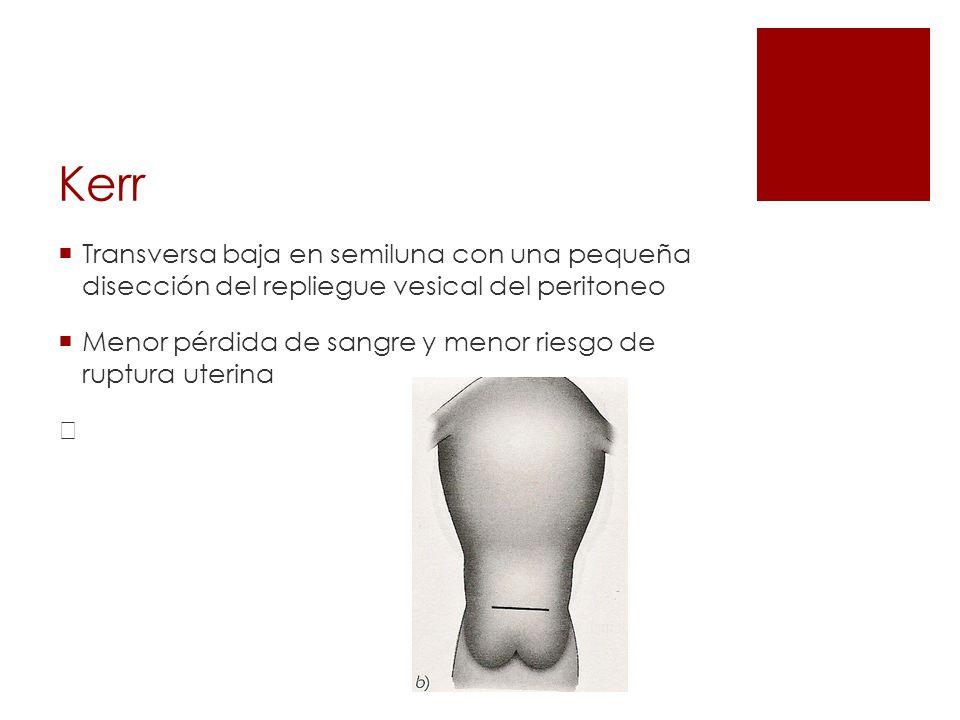 Kerr Transversa baja en semiluna con una pequeña disección del repliegue vesical del peritoneo Menor pérdida de sangre y menor riesgo de ruptura uteri