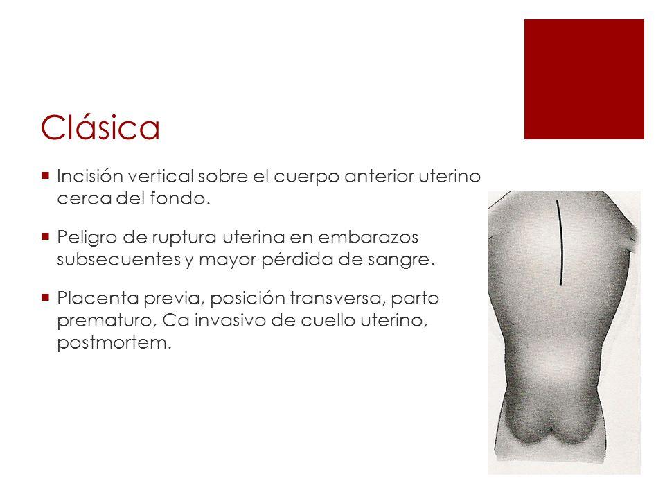 Clásica Incisión vertical sobre el cuerpo anterior uterino cerca del fondo. Peligro de ruptura uterina en embarazos subsecuentes y mayor pérdida de sa